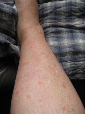 Hives Diary! 006